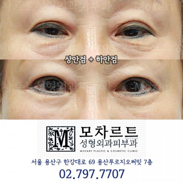 안검하수교정, 하안검수술