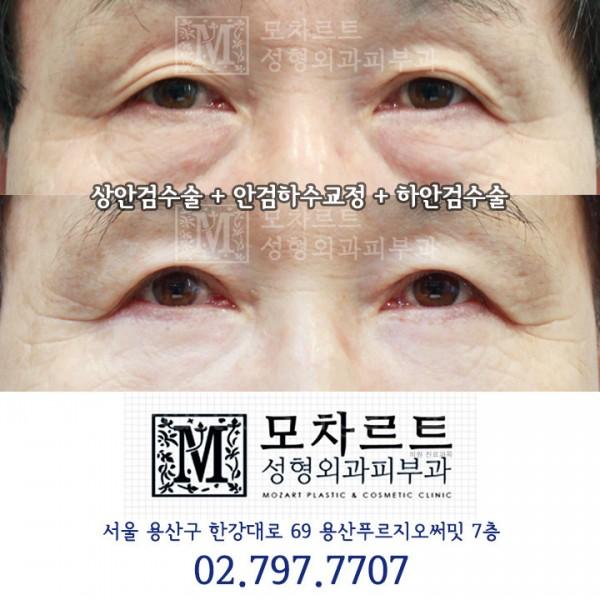 상안검수술 + 안검하수교정 + 하안검수술