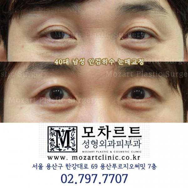 안검하수 눈매교정