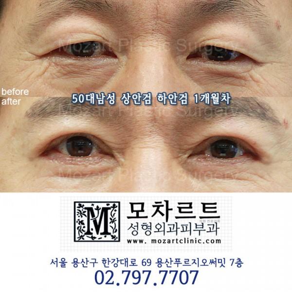 상안검 + 하안검